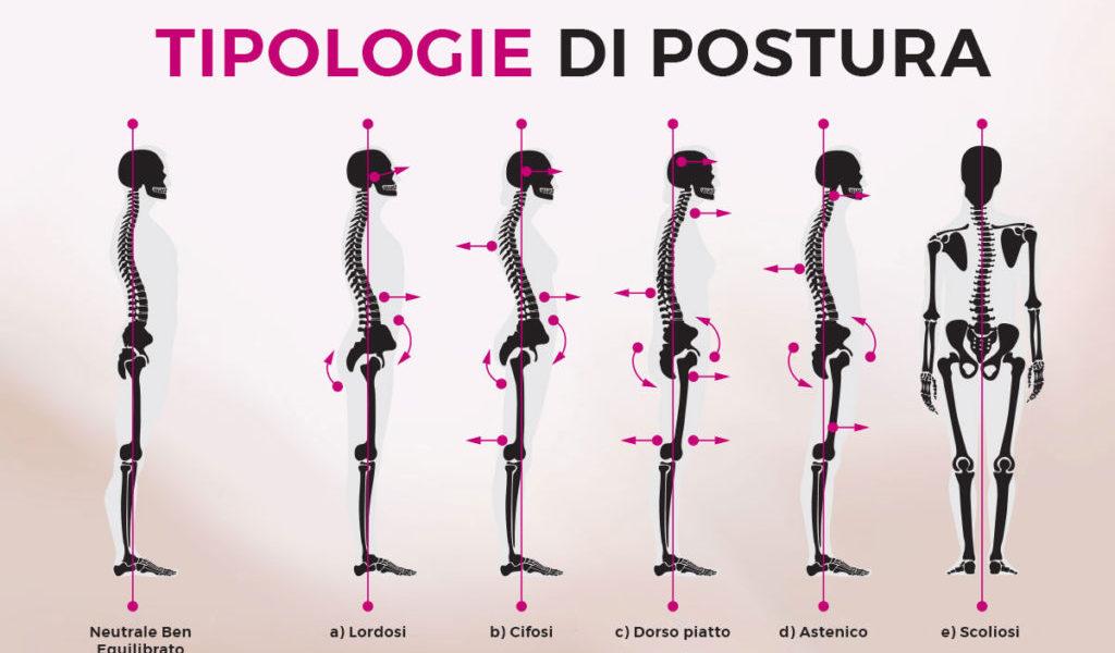 La postura corretta equivale e schemi rigidi?
